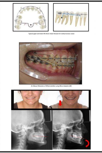 casos-clinicos-curso-Minimplantes-2019202